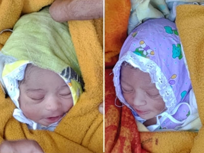 twins found in pune_1&nbs